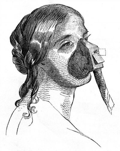 Vapour or ether inhalation apparatus. Credit Wellcome Collection. CC BY 4.0 e1580502810664